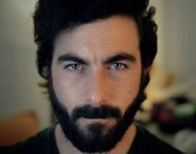 Борода не растет или же растет неравномерно: почему это происходит и как быть фото