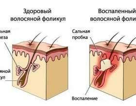 Действие шампуней от себореи кожи головы фото