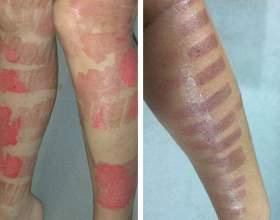 Как лечить ожоги после лазерной эпиляции? фото