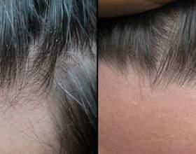 Низорал – лечебный и профилактический шампунь против перхоти фото