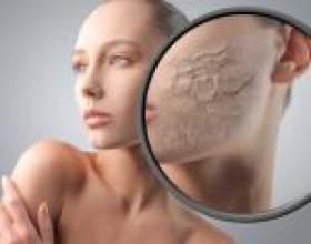 Почему кожа сухая — основные причины сухой кожи лица и тела фото