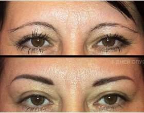 Результат на лицо: лазер для удаления татуажа – способ номер 1 фото