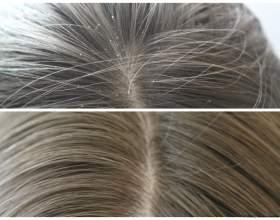 Защита поврежденных волос с помощью шампуня фитовал фото